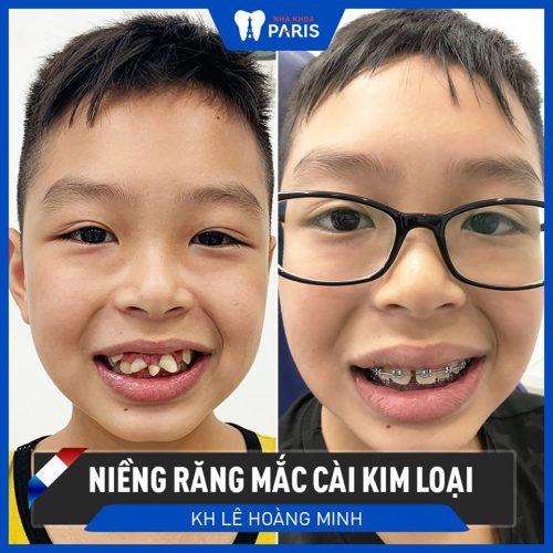 trẻ em răng mọc ngược