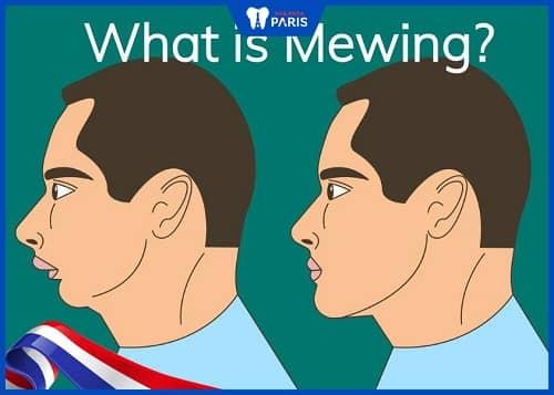tập mewing chữa lẹm cằm