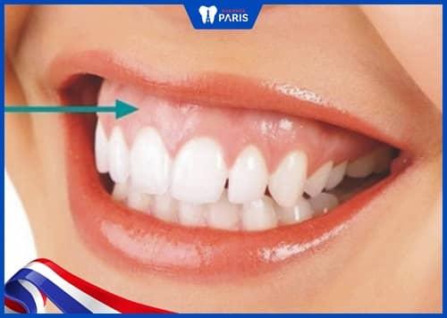 chữa cười hở lợi k phẫu thuật bằng nâng cơ môi