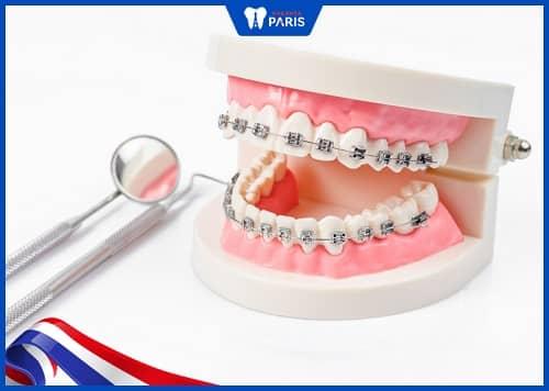 niềng răng chữa lẹm cằm