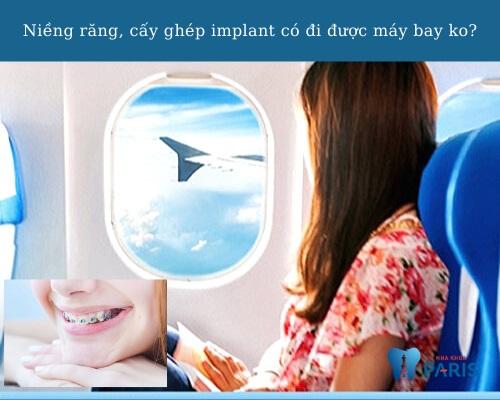 Niềng răng có đi máy bay được không?