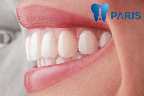 niềng răng không mắc cài tại hà nội