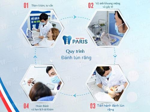 Quy trình đánh lún răng chuẩn tại nha khoa Paris