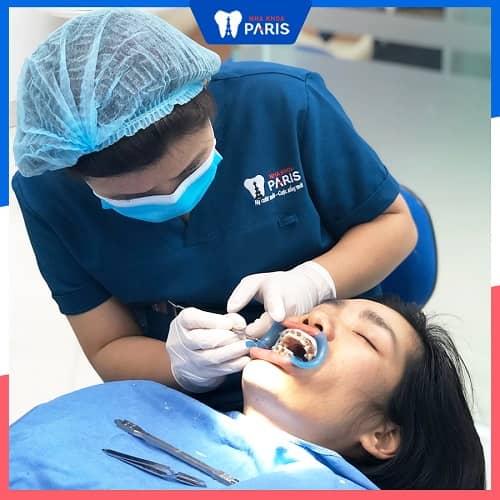 quy trình gắn mắc cài niềng răng