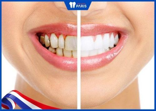 răng bọc sứ có tẩy trắng được không