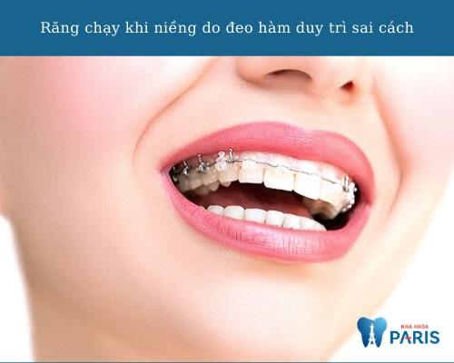 Nguyên nhân răng chạy lại sau khi tháo niềng