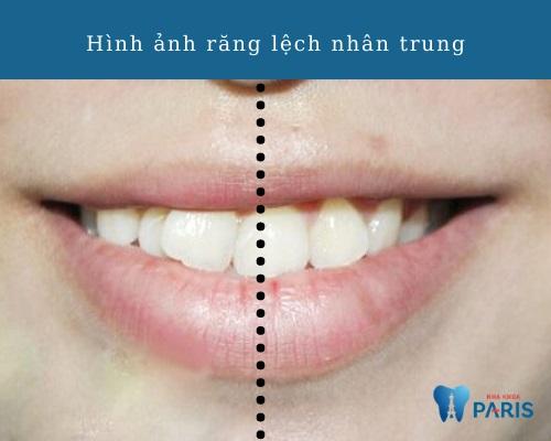 răng lệch nhân trung về phía phải