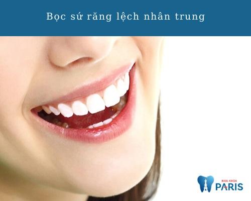 Bọc răng sứ cải thiện lệch nhân trung