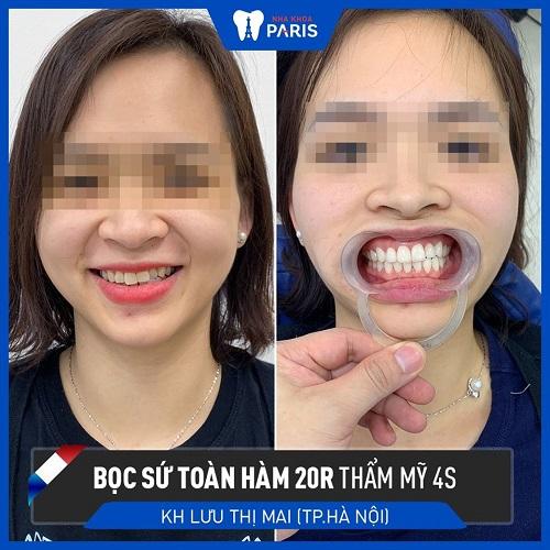 bọc răng sứ răng bị lệch nhân trung răng thẩm mỹ 4S