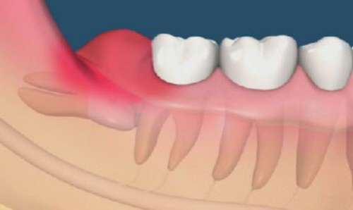 nhận biết răng mọc ngược
