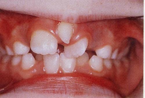 răng mọc ngược trên lợi