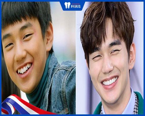 Idol Hàn niềng răng