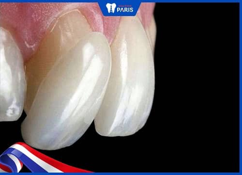 vì sao răng sứ lại phải tẩy trắng