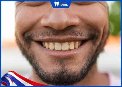 tại sao phải tẩy trắng răng sứ