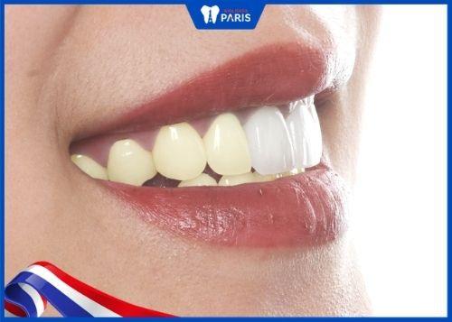 tẩy trắng răng sứ