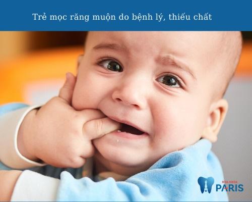Những nguyên nhân khiến trẻ mọc răng chậm