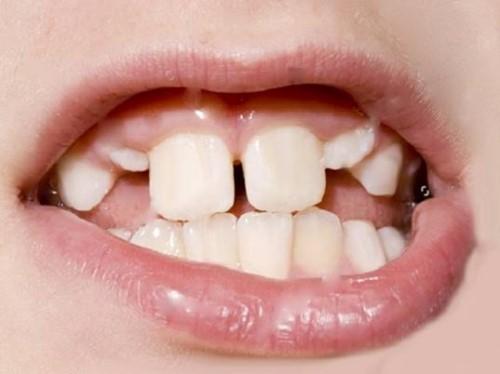 trẻ mọc răng không đúng thứ tự