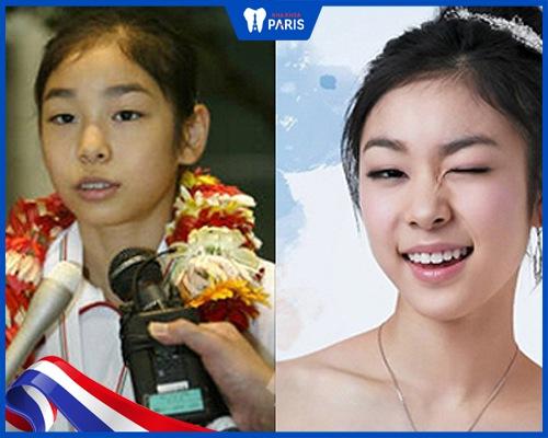 Yuna niềng răng