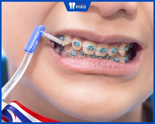 bàn chải kẽ răng cho người niềng răng