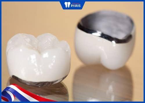 răng sứ bảo hành mấy năm