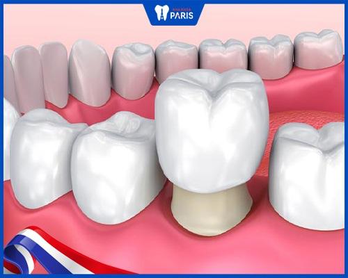 Bọc răng sứ 1 chiếc được không?
