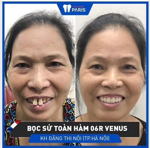 Dán răng sứ cho 2 răng cửa to, dài