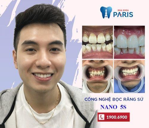 bọc răng sứ cho răng cửa sâu