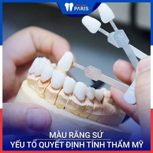 bọc răng sứ nguyên hàm nên chọn răng loại gì