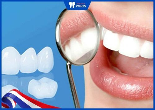 yếu tố quyết định giá bọc răng sứ cả hàm