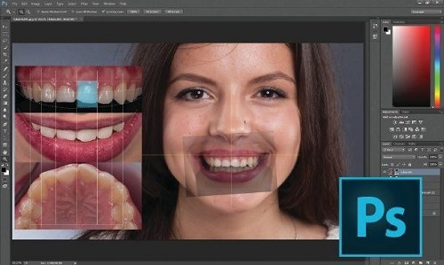 chỉnh răng hô không cần niềng bằng photoshop