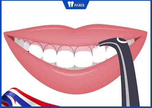 cách chữa niềng răng bị hở lợi