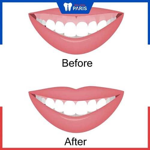 cách điều trị niềng răng bị hở lợi