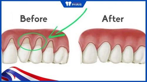 tụt lợi có nên bọc răng sứ