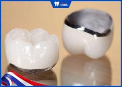 bọc răng cửa không nên chọn răng kim loại