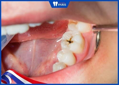miếng trám răng bị vỡ không trám lại có sao không