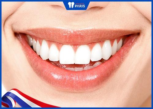 lợi ích khi làm răng sứ toàn hàm