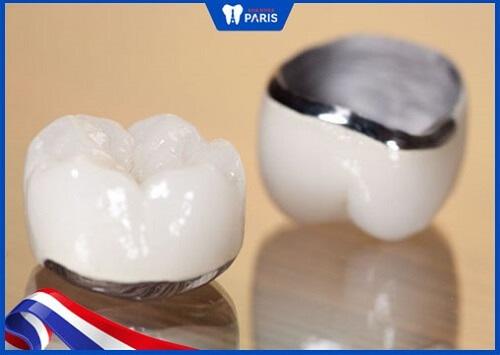 làm răng sứ bị đen chân răng