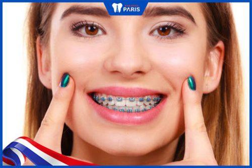 Chi phí niềng răng ở Hàn Quốc là bao nhiêu?