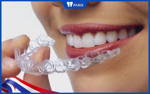 Niềng răng ở Mỹ hay về Việt Nam?