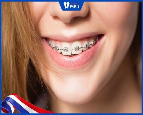 Ưu nhược điểm cụ thể của niềng răng vline
