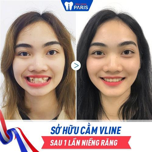 niềng răng tạo mặt vline