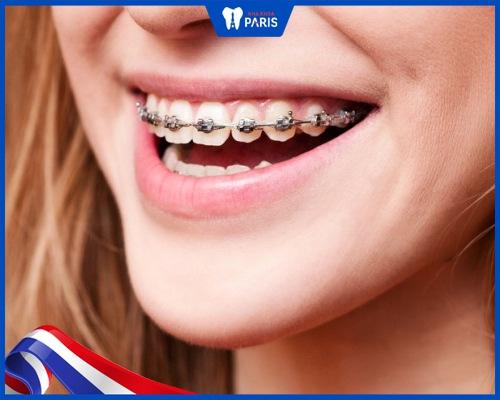 Niềng răng vline là gì?