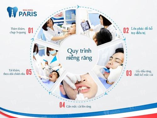 Quy trình niềng răng tạo cằm vline