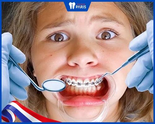 tại sao niềng răng lại bị hở lợi?