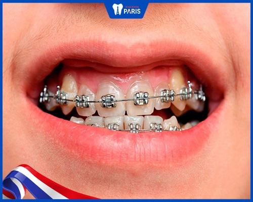 Đâu là cách chữa niềng răng xong bị hở lợi hiệu quả nhất?