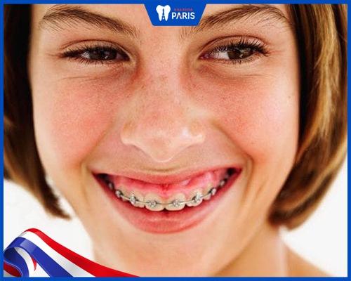 Niềng răng xong bị hở lợi có đúng không?