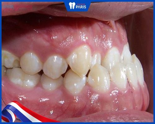 răng mọc ngược là gì