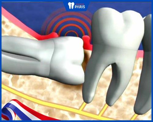 Răng khôn mọc ngược
