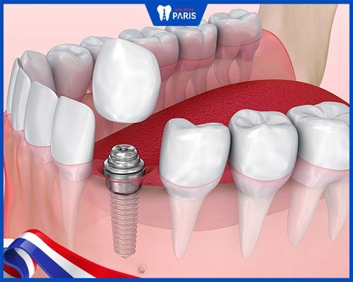 Cách khắc phục khi mất răng số 3