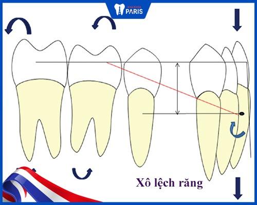 Nhổ răng số 3 có nguy hiểm không?